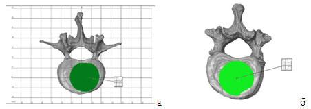 Ортопедический damage-control при повреждениях грудопоясничного отдела позвоночника у пациентов с политравмой