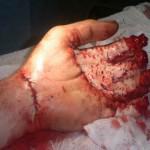 Многое решают руки: микрохирургия кисти по-татарстански