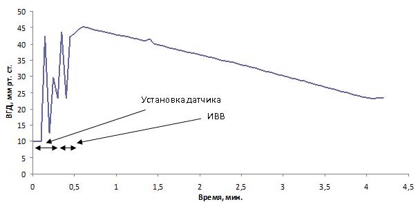 Участие путей оттока водянистой влаги в нормализации ВГД после интравитреального введения дополнительного объема жидкости (экспериментальное исследование)