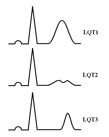 Синдром удлиненного интервала QT — основные клинико-патофизиологические аспекты