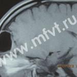 Без права на промедление: неотложные состояния в оториноларингологии